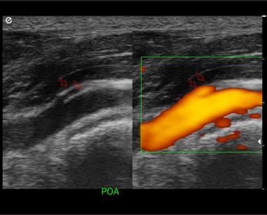 Peripheral Artery