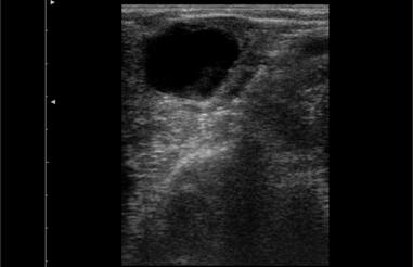 Follicular Cyst