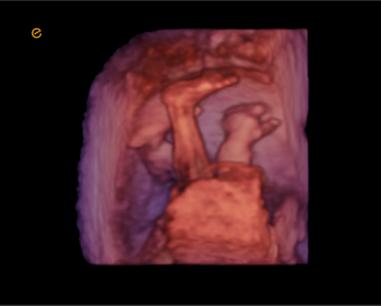 4D | 胎儿脚