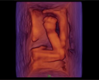 胎儿 | 手脚