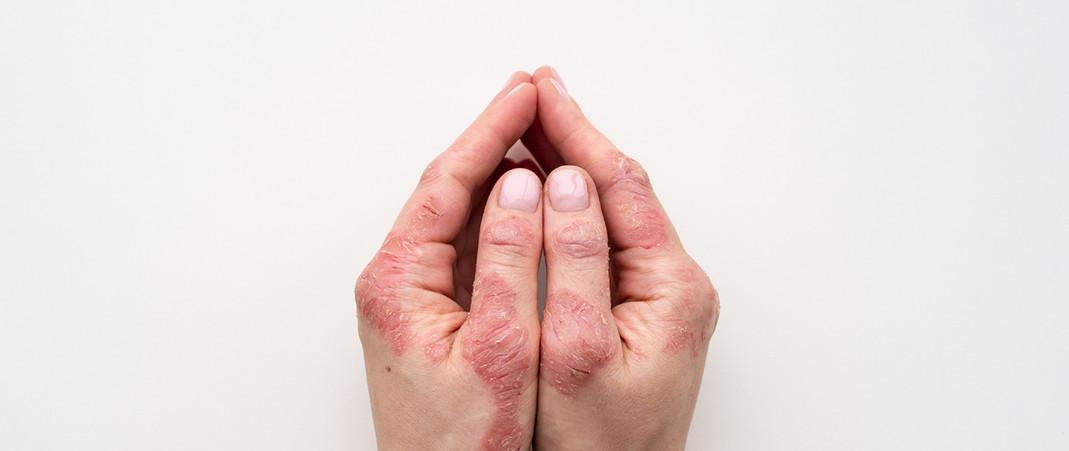 Common SkinTreatments