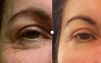 Anti Aging Augen Peeling.jpg