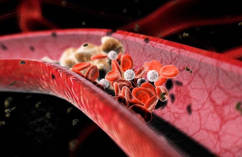 Understanding Lipids & Cholesterol