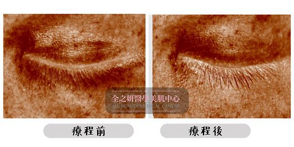 色素型黑眼圈 血管型黑眼圈 結構型黑眼圈 黑眼圈成因 黑眼圈針