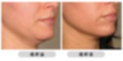 全之妍醫學美肌中心 All Beauty Medical Centre 提供皮膚鬆弛療程,包括 無針埋線  HIFU 聚焦超聲刀 ULTHERAPY 可有效 收緊皮膚 緊緻皮膚