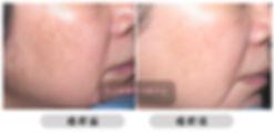 ALL BEAUTY 全之妍醫學美肌中心打斑去斑 包括:雀斑、太陽斑、曬斑、老人斑、荷爾蒙斑、咖啡牛奶斑 Lumenis M22 OPT™ 完美脈衝光色班療程 Fotona StarWalker® 皮納秒雙脈衝色斑療程 Dermafusion 無針水光槍之淡斑療程 醫學級果酸療程Lumenis M22 OPT™ 完美脈衝光色班療程 Fotona StarWalker® 皮納秒雙脈衝色斑療程 Dermafusion 無針水光槍之淡斑療程 醫學級果酸療程