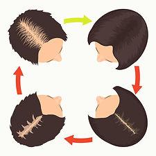 女性脫髮 Hair Regrowth 活髮生髮療程 M22 ResurFX Mesoestetic Biotin