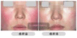 All Beauty 全之妍醫學美肌中心提供 敏感療程 改善皮膚敏感泛紅 有效抗敏感 去敏感 Lumenis M22 OPT™ 完美脈衝光抗敏修復強膚療程 Fotona StarWalker®KTP祛紅消炎療程 Dermafusion無針水光槍之抗敏療程 CRS 肌源再生面部治療