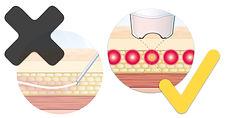 Time Traveller 時間光學專家 皮膚激光中心 美容儀器 Liftera 無針埋線