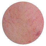 All Beauty 全之妍醫學美肌中心提供 敏感療程,改善皮膚敏感泛紅,有效抗敏感 去敏感