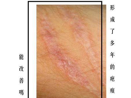 【形成了多年的疤痕能改善嗎?】