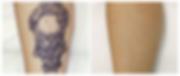 """""""激光洗紋身"""" """"去除紋身"""" """"洗紋身"""" """"Tattoo Removal"""""""