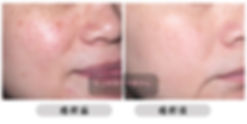 ALL BEAUTY 全之妍醫學美肌中心打斑去斑 包括:雀斑、太陽斑、曬斑、老人斑、荷爾蒙斑、咖啡牛奶斑 Lumenis M22 OPT™ 完美脈衝光色班療程 Fotona StarWalker® 皮納秒雙脈衝色斑療程 Dermafusion 無針水光槍之淡斑療程 醫學級果酸療程