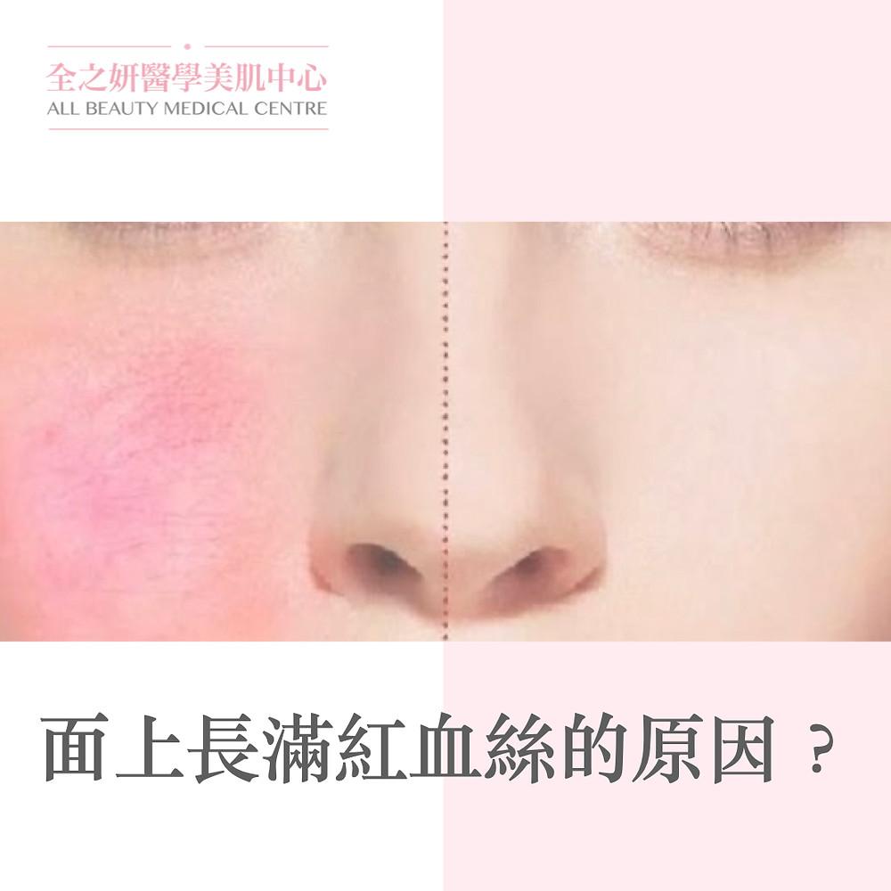 紅血絲 皮膚敏感 敏感皮膚 敏感肌 Lumenis M22 完美脈衝光