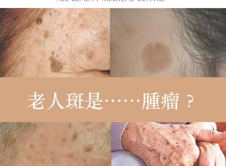 【#老人斑 是腫瘤 ?】