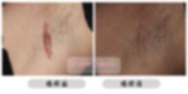 凹陷性疤痕 疤痕增生 疤痕肉芽 去疤痕 蟹足腫 Scar 去疤貼 除疤貼
