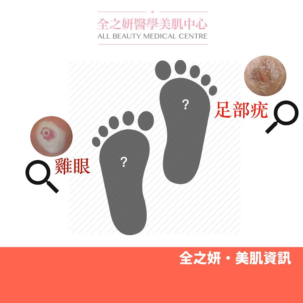疣是什麼 雞眼 足部疣 二氧化碳激光脫疣  CO2 Laser脫疣  CO2 激光脫疣 冷凍治療 手部疣 扁平疣