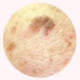 ALL BEAUTY 全之妍醫學美肌中心打斑去斑 包括:雀斑、太陽斑、曬斑、老人斑、荷爾蒙斑、咖啡牛奶斑