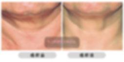 全之妍醫學美肌中心 All Beauty Medical Centre 提供細紋皺紋 療程 可有效 去紋  淡紋 減淡紋理 減淡細紋