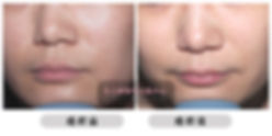 All Beauty 全之妍醫學美肌中心提供 美白 嫰膚 激光 果酸 療程  改善 泛黃 暗啞 膚色不均