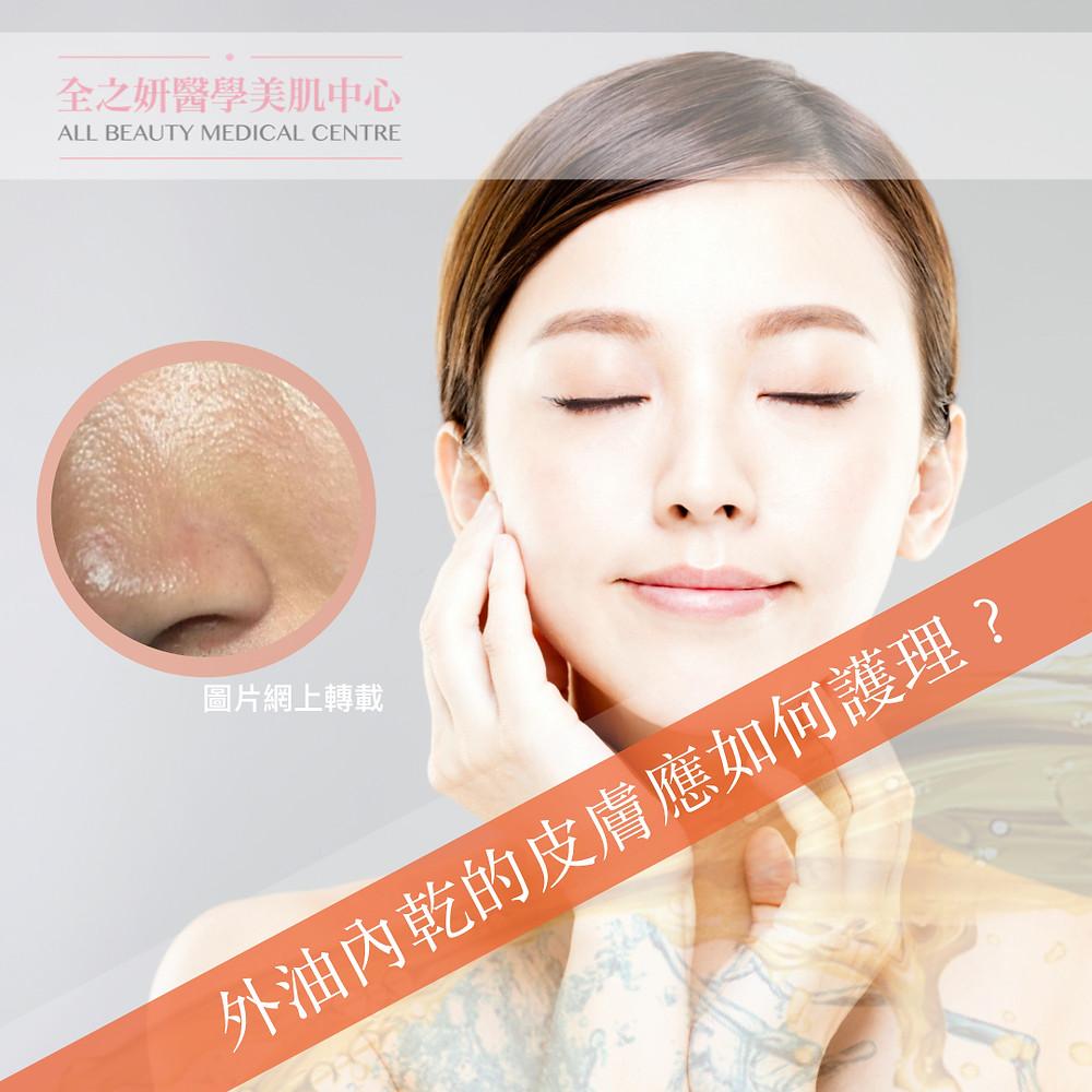 外油內乾的皮膚應如何護理 Lumenis M22 完美脈沖光 Fotona Laser 激光 ZO Skin Health