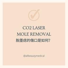 【CO2 LASER 脫墨痣的傷口是如何?】