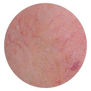 Facial Redness.001.jpeg