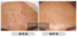 All Beauty 全之妍醫學美肌中心 毛孔療程可收細毛孔 縮細毛孔 處理毛孔粗大 粗大毛孔