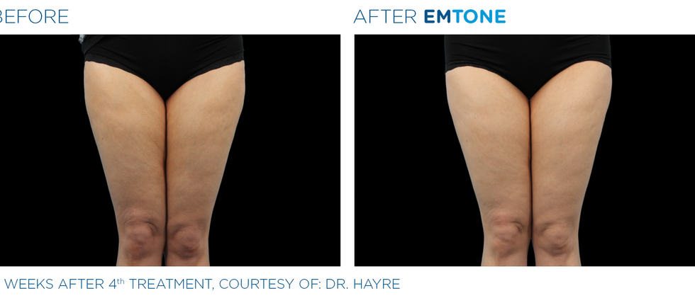 Emtone_PIC_Ba-card-female-thighs-012_EN100.png