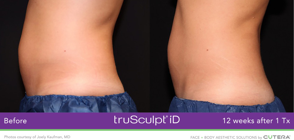 truSculpt-iD before & after