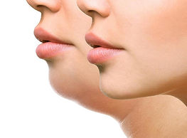 chin sculpting.jpg