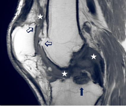 Diffused TGCT tumor of the knee.png