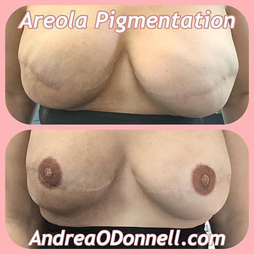 Areola Pigmentation by Andrea ODonnell