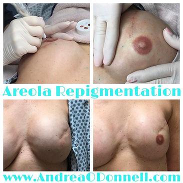 reola pigmentation by Andrea ODonnell 2nd Skin Studio Brighton Michigan