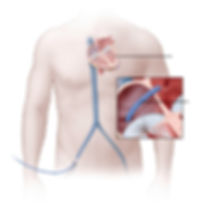 heart and catheter