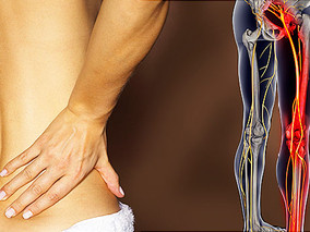 Sciatica and Social Security Disability