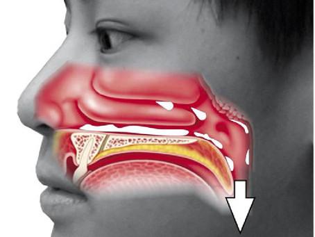 耳鼻喉科醫生專訪:「鼻涕倒流」不治療,恐誘發哮喘
