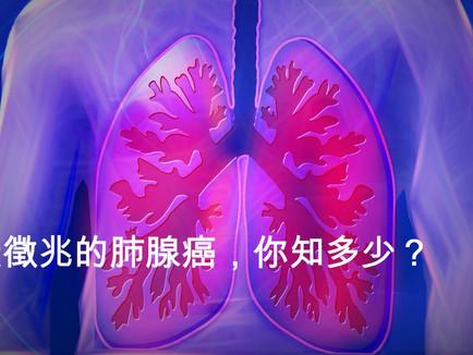 無徵兆的肺腺癌,你知多少? [曾偉光醫生 臨床腫瘤專科醫生]