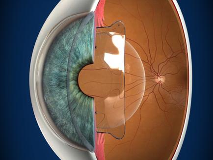 矯視手術 – 怎樣選擇最適合自己的矯視手術?[何俊浩醫生 眼科專科醫生]