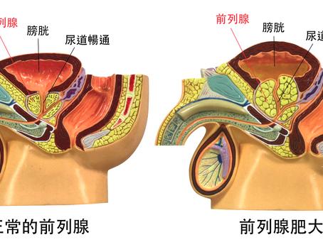 男人五十之苦(二):良性前列腺增生的最新治療 [楊協和醫生 - 泌尿外科專科醫生]
