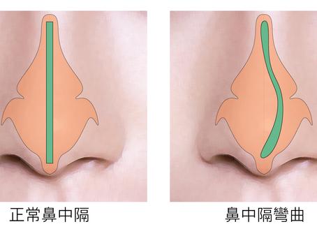 認識鼻中隔彎曲,完全擊退鼻塞 [簡穎妮醫生 耳鼻喉專科醫生]