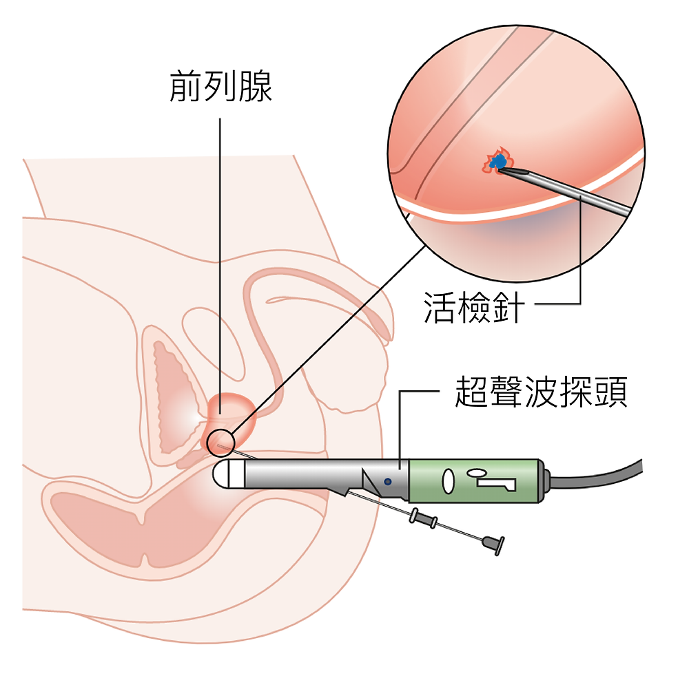 https://commons.wikimedia.org/wiki/File:Diagram_showing_a_prostate_biopsy_CRUK_472.svg