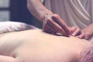 acupuncturist - acupuncture - seattle