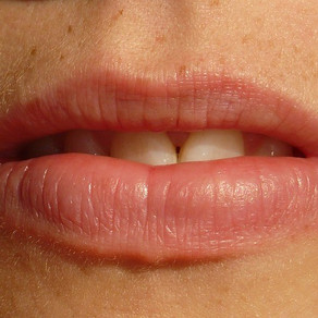 Cold Sores - Effective Natural Treatment