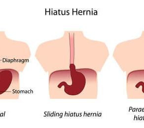 Hiatal Hernia Syndrome
