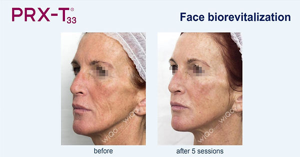 Before-after-PRX-T33.jpg