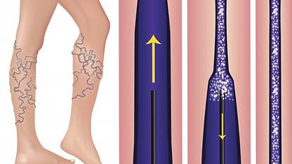 sclerotherapy_edited_edited_edited.png