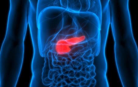 Câncer de pâncreas: saiba mais sobre a doença
