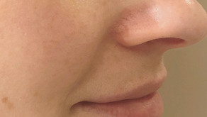 Skin The Surface - Not Your Average Facial Flushing