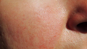 Rosacea: No ifs, ands or BLUSH about it!